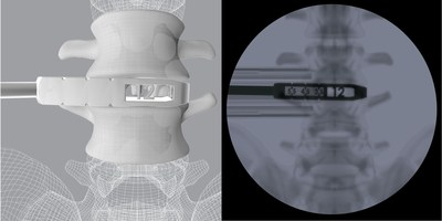 CoreLink OLIF additively manufactured Trials feature height and length measurements visible only under fluoroscopy to facilitate implant selection and operative workflow.